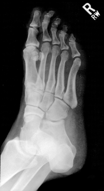 FootScan